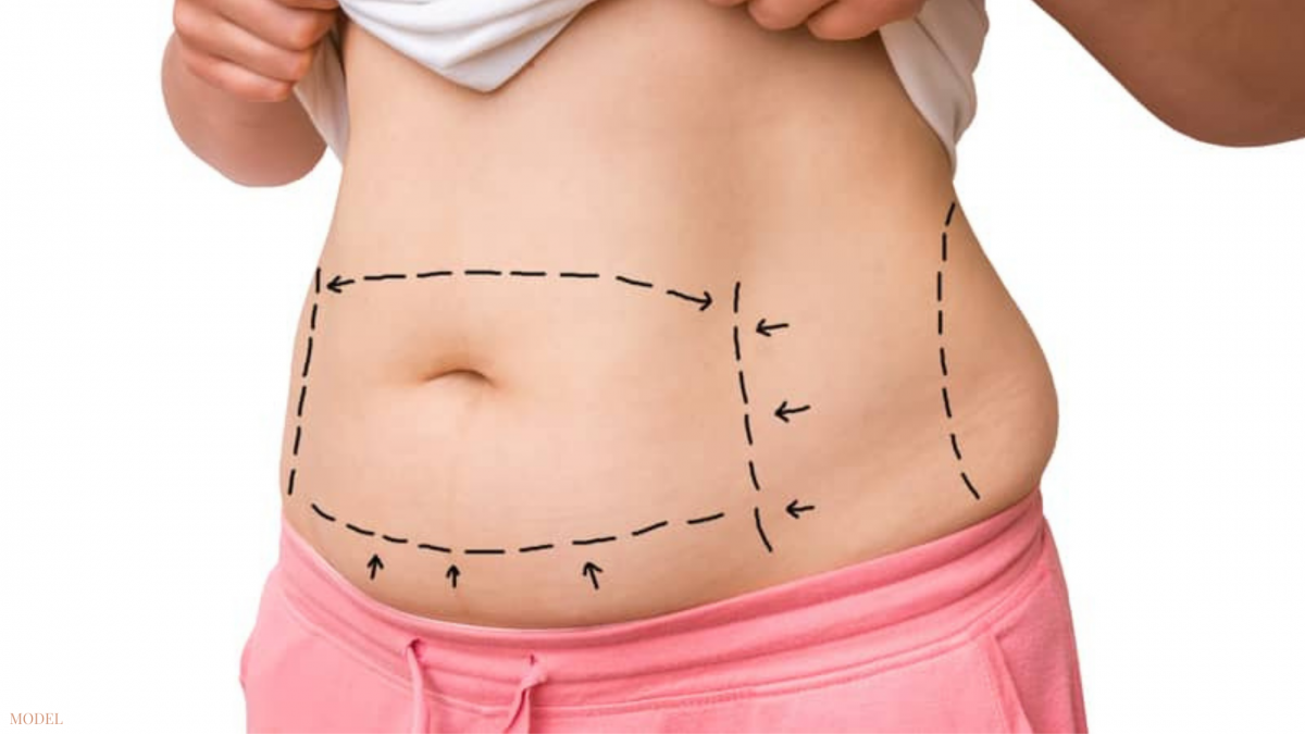 Finding about the different types of tummy tucks in Houston, TX